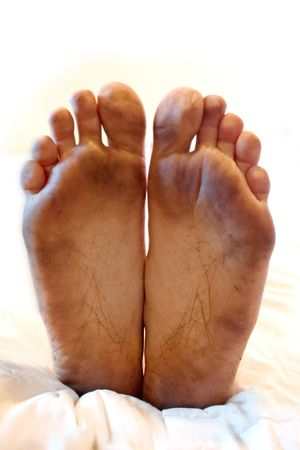 very dirty: an isolated pair of very dirty feet