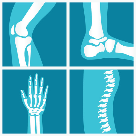 talus: Set of human joints, knee joint, elbow joint, ankle joint, wrist, skeletal spinal bone structure of Human Spine, emblem or sign of medical diagnostic center or clinic, flat vector illustration.