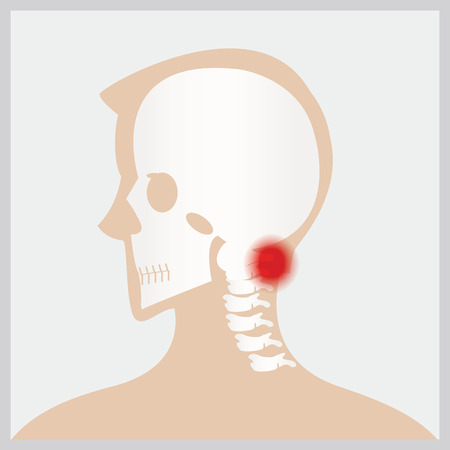 neurosurgery: Disease of  head and neck, the joints and bones,human joints, skeletal spinal bone structure of Human Spine, medical health care flat vector illustration.