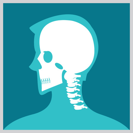 neurosurgery: Xray of  head and neck, the joints and bones,human joints, skeletal spinal bone structure of Human Spine, medical health care flat vector illustration.