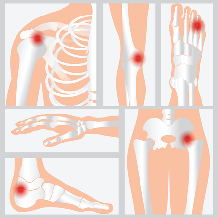 Disease of the joints and bones, medical health care flat vector illustration. Vectores