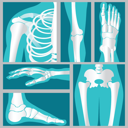 Set of xray of human,human joints,knee joint,elbow joint, ankle joint, wrist, skeletal spinal bone structure of Human Spine, emblem or sign of medical diagnostic center ,flat vector illustration.