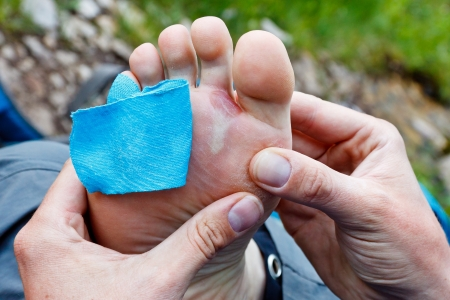 plaster foot: A hiker is inspecting a foot blister