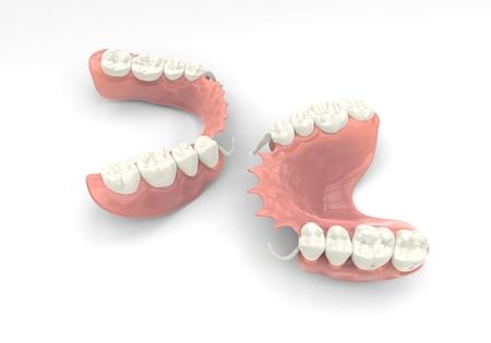 3D Rendering Prothese Standard-Bild - 74534132