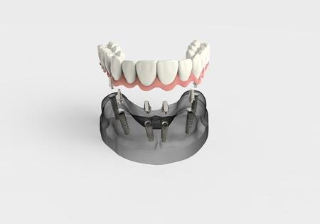 3D rendering implant