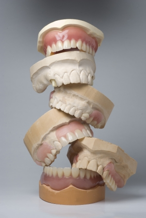 maxilla: A collection of dentures piled on top of each other