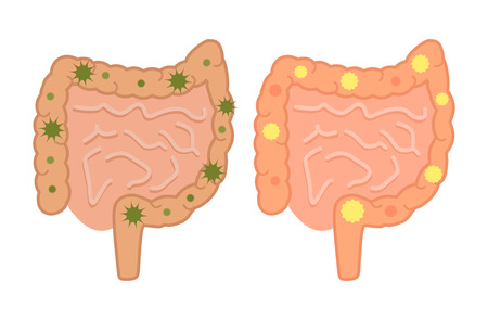Healthy and sick gastrointestinal tract, and various bacteria. Icon of the intestinal flora in a flat style. vector illustration
