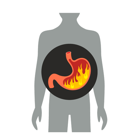 heartburn in the stomach. flat vector illustration isolated on white background