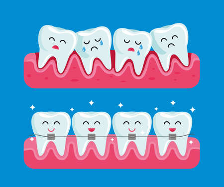 teeth before and after braces. funny dental illustration in cartoon style