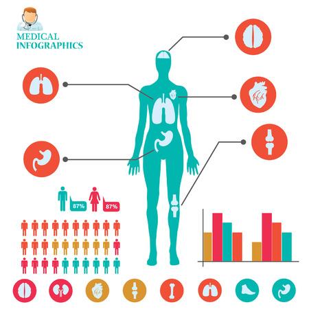 graphic: Medical info graphic. Illustration
