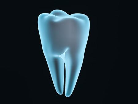 Dental implant dentist, tooth layout, plastics, man, teeth treatment 3D rendering Standard-Bild - 115703026