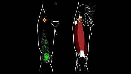 Trigger Point Rectus femoris muscle 版權商用圖片 - 130982027