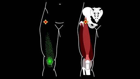 Trigger Point Rectus femoris muscle Leg pain