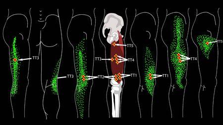 Vastus Lateralis Trigger Points. Leg pain. Release 版權商用圖片 - 130982071