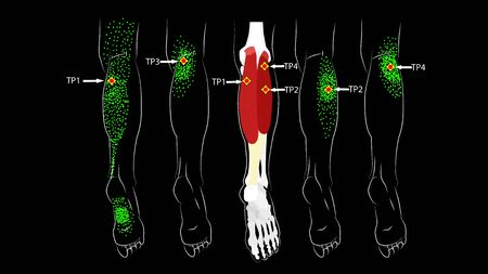Calf muscle. Trigger points in the leg, reflected pain on the back of the thigh and in the foot. Leg pain Illusztráció