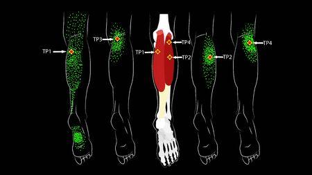 Músculo de la pantorrilla. Puntos gatillo en la pierna, dolor reflejado en la parte posterior del muslo y en el pie. Dolor de pierna