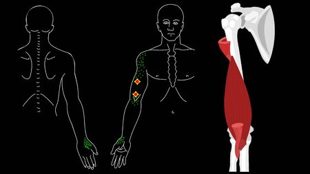 Brachialis muscle. Trigger points in the arm