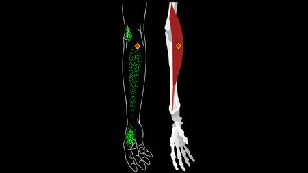 Brachioradialis muscle. Pain and trigger points in the hand.