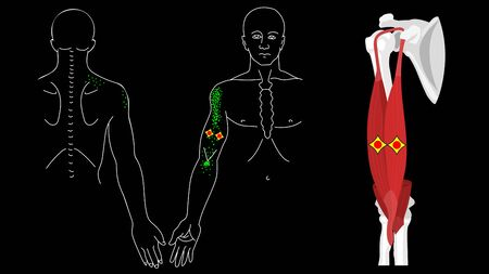 Musculus biceps brachii. Biceps trigger points and pain