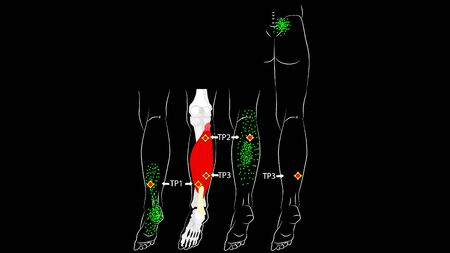 Soleus muscle. Trigger points and reflected leg pain. Myofascial release.