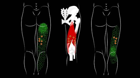 Trigger points and reflected pain in the hamstring muscles.