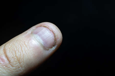 the habit of biting your nails. Bitten toenail close-up.