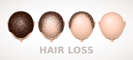 Hair loss. Set of four stages of alopecia
