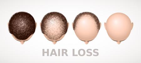 Perdida de cabello. Conjunto de cuatro etapas de alopecia Foto de archivo - 75478724