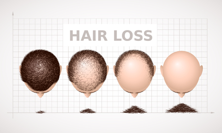 Hair loss - graph of four stages of alopecia.