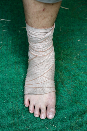 deformity: Foot and Ankle injured with bandage on green background Stock Photo