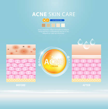 acne skin spot pimple problem vector design.