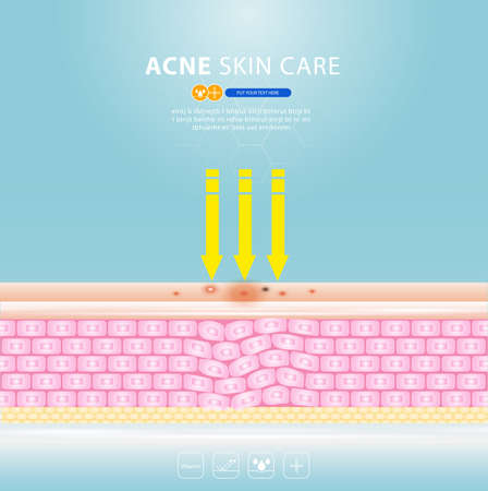 acne skin spot pimple problem vector design. 版權商用圖片 - 154868486
