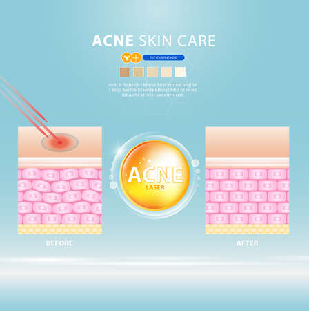 acne skin spot pimple problem vector design. 版權商用圖片 - 154868070