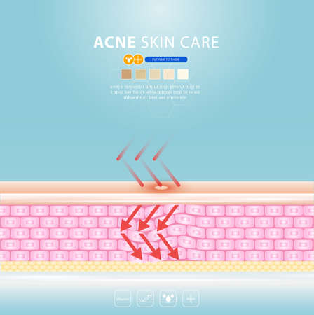 acne skin spot pimple problem vector design. 版權商用圖片 - 154868936