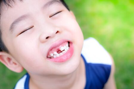Young  Asia boy (6 years old) happy to lost his top front milk teeth. He looks up his face and standing in the garden under sunlight with copy space. Feeling smile and open his mouth.