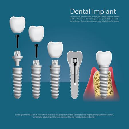 인간의 치아와 치과 인공 벡터 일러스트 레이 션