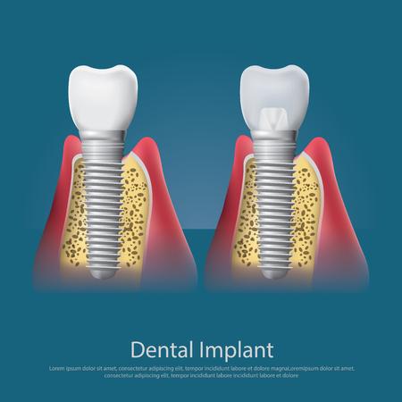 orthodontist: Human teeth and Dental implant Vector Illustration