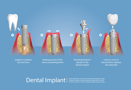 Menschliche Zähne und Zahnimplantat Vektor-Illustration Standard-Bild - 85649359