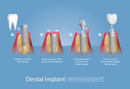 Menselijke tanden en tandheelkundige implantaat Vector illustratie