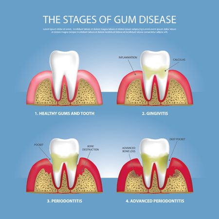 Human teeth Stages of Gum Disease Vector Illustration Vettoriali