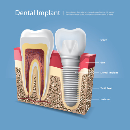 Human teeth and Dental implant Vector Illustration