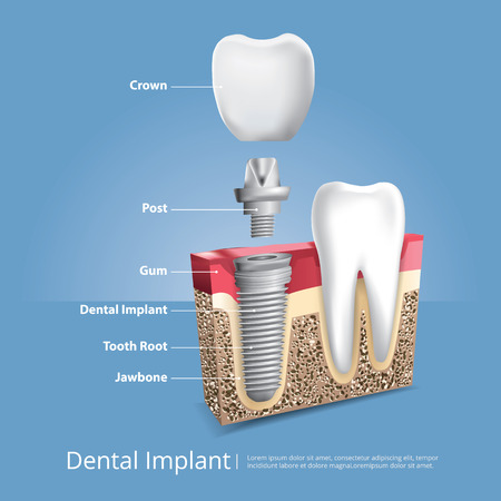 Human teeth and dental implant diagram vector illustration