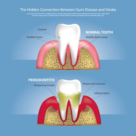 Hidden Connection Between Gum Disease and Stroke Vector Illustration