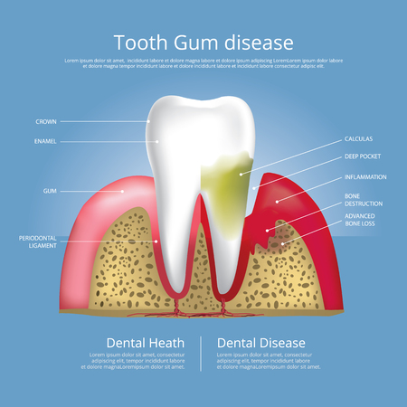 Human Teeth Stages Of Gum Disease Vector Illustration Royalty Free ...