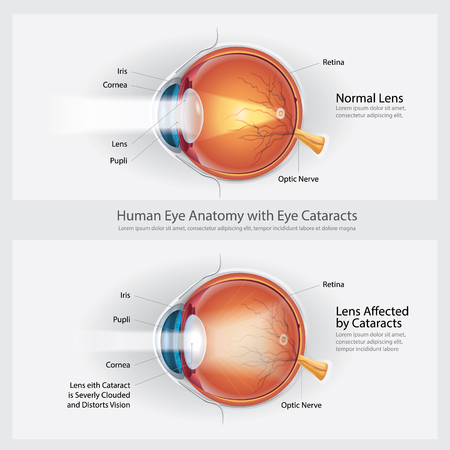 Cataracts Vision Disorder and Normal Eye Vision Anatomy Vector illustration