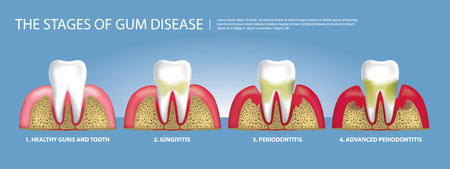 Human teeth Stages of Gum Disease Vector Illustration 일러스트