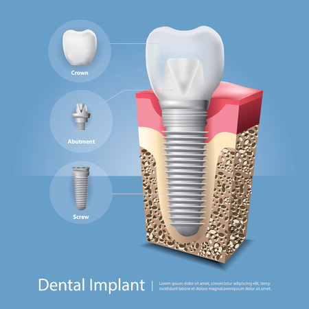 Human teeth and Dental implant Vector Illustration Stok Fotoğraf - 98120665