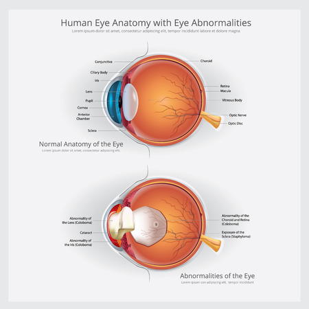 Eye Anatomy with Eye Abnormalities Vector Illustration.