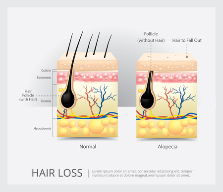 Hair Loss Structure Vector Illustration Illustration