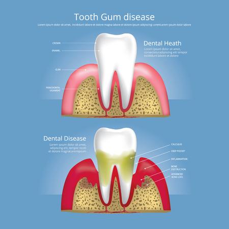 Human teeth Stages of Gum Disease Vector Illustration Vettoriali